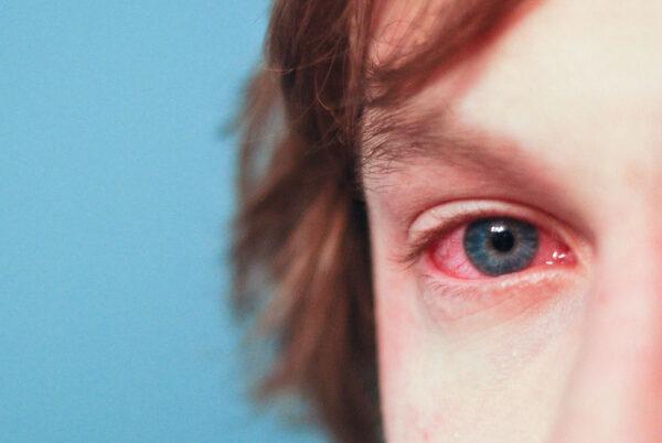 red eyes, allergies
