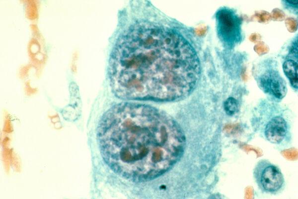 osteosarcoma, bone cancer