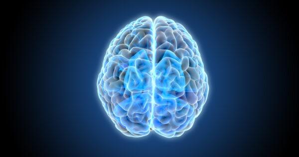 brain x-ray image