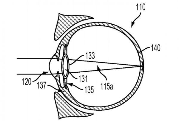 Google Seeks Patent For Implantable Smart Intraocular Device