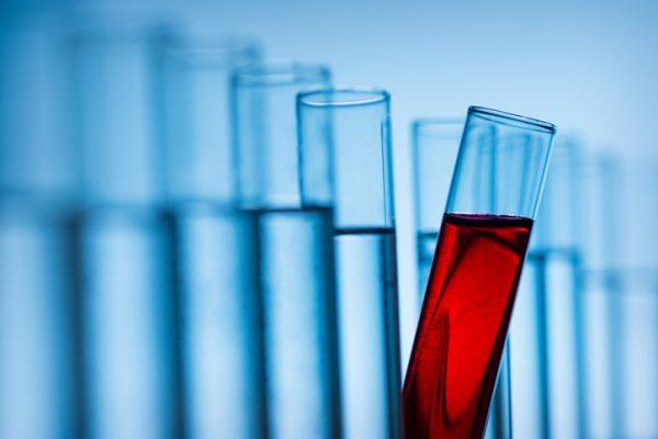 Liquid biopsy highlights from #ASCO2017 - MedCity News