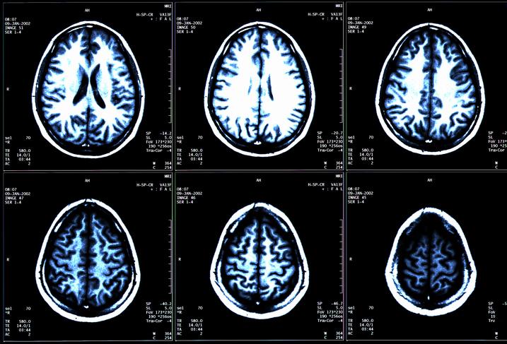 Six panels of an MRI scan.