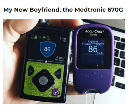 Medtronic's MiniMed 670G insulin delivery system gave me peace of