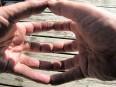 fingers arthritis