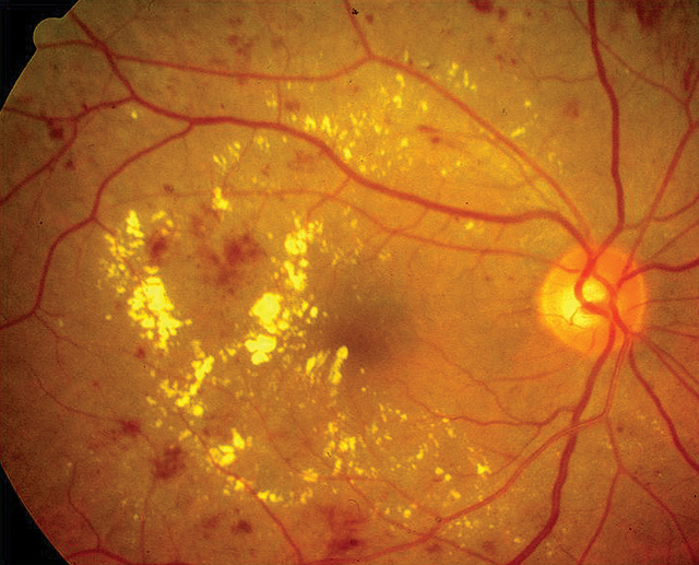 Cataract development may be linked to statin use