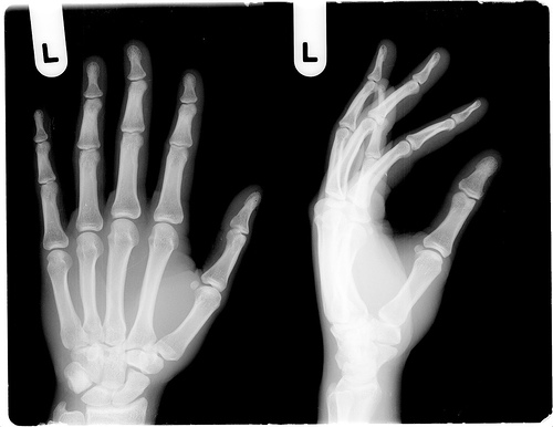From pandas to xrays: Image expert creates iPad viewer to allows radiologists to share files, collaborate in real time
