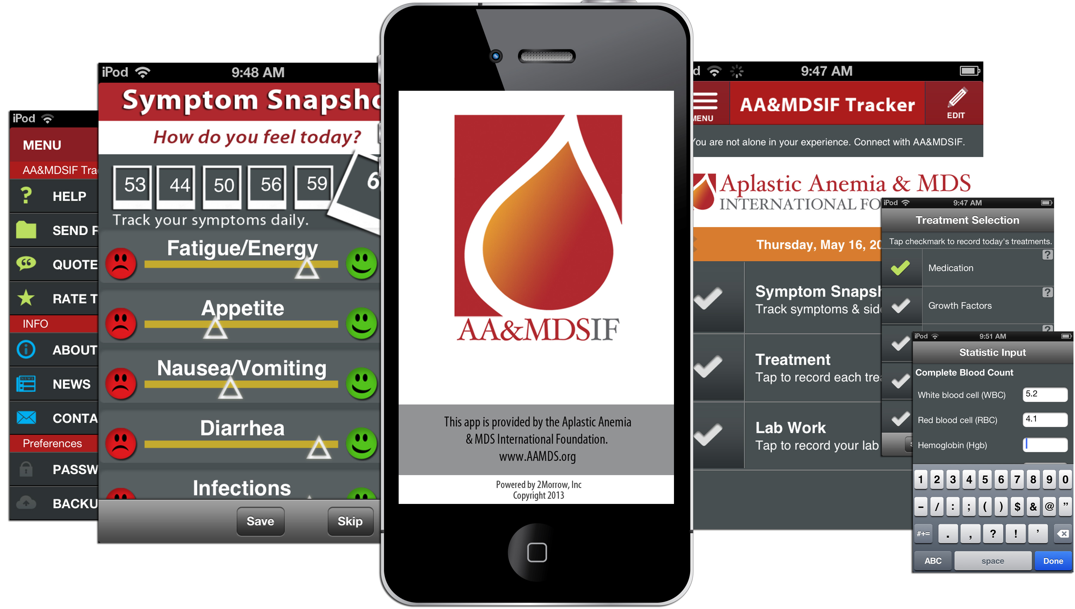 Symptom tracker app for patients with rare bone marrow diseases aims to improve outcomes