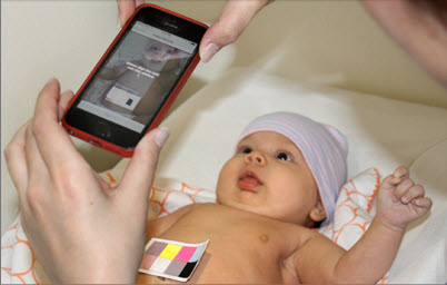 Scientists develop app to diagnose jaundice in newborns