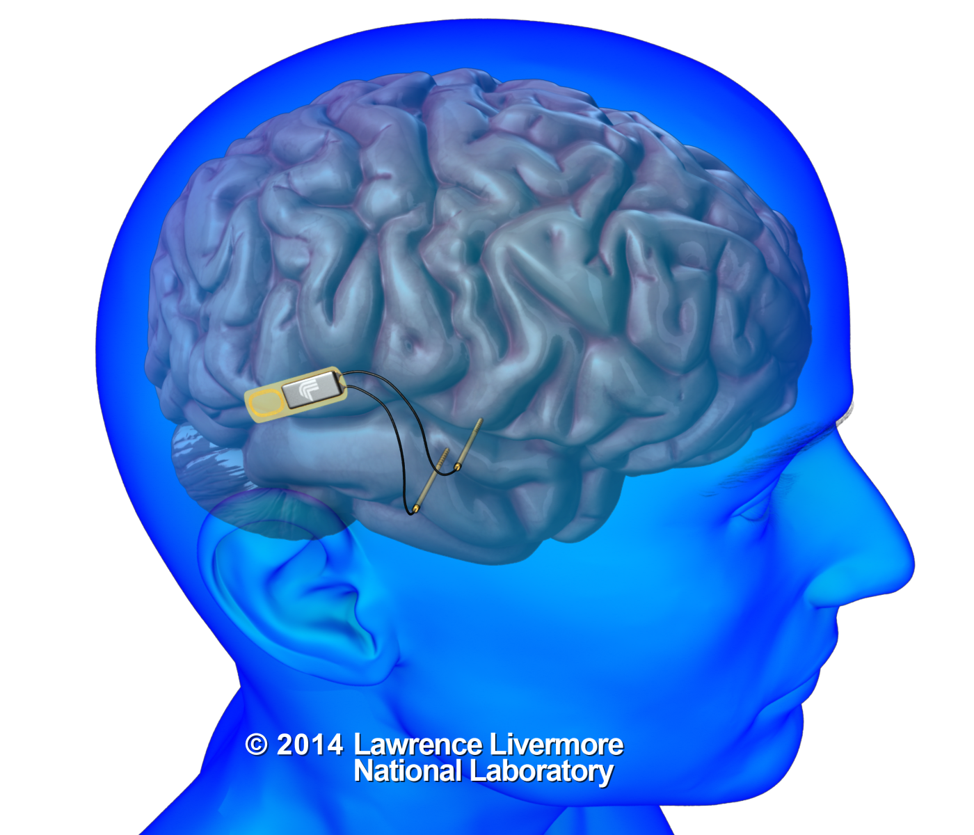 Implantable brain device could restore lost memories, help create new ones