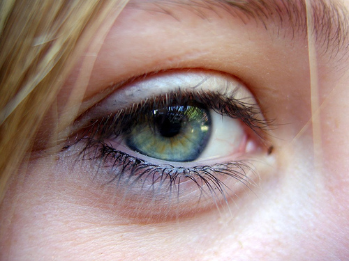 Major cause of blindness linked to calcium deposits in the eye