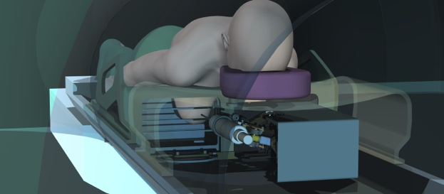 Robotics used in space enable a 'one-stop shop' for breast MRI, biopsy, tissue ablation