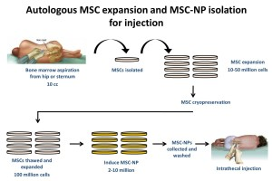 MS infographic on process