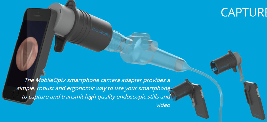 MobileOptx uses medical device innovation to bring endoscope and iPhone together