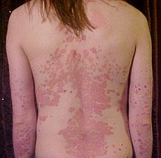psoriasis, skin treatment