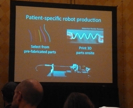 Another kind of personalized medicine: Custom-made surgical robots built for one patient