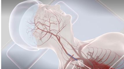Using ultrasound to treat stroke: Cerevast Therapeutics raises $10M