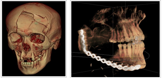 Startup uses 3D printing tech to create alternative to bone grafts