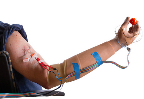 Prosthetic limb restores sense of touch, heals phantom pain