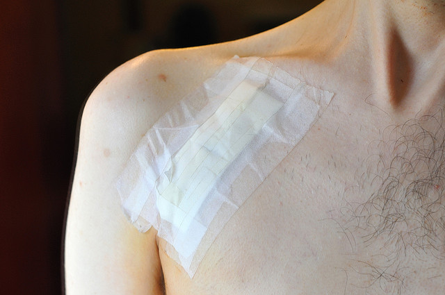 British wound care company starting clinical trials to bring tests to U.S.