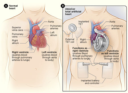 Syncardia ramping up production of its total artificial heart