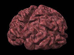 A brain with Alzheimer's disease.