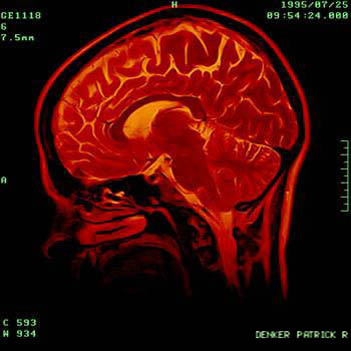 Researchers discover that two defective copies of a single gene cause rare brain disorder
