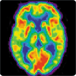 CWRU researchers: Drug shows promise in reducing Alzheimer's plaque in brain