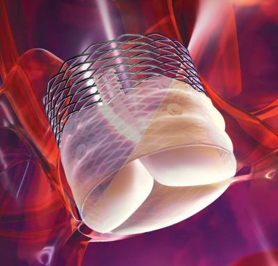 BSX scores CE Mark for Lotus Valve System for patients with severe aortic stenosis