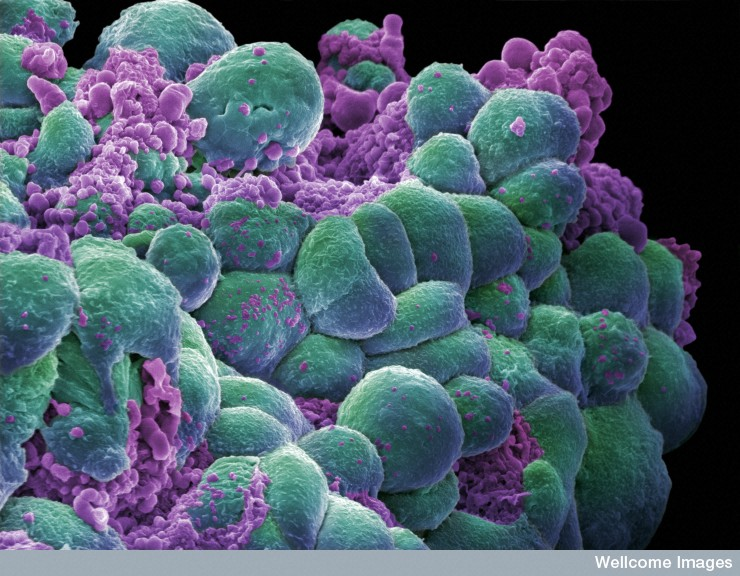 National Cancer Institute releases largest-ever cancer gene database