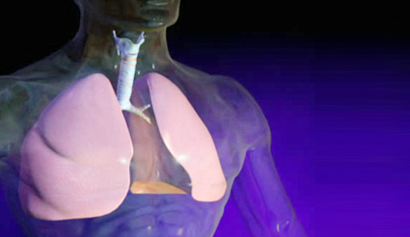 Med-tech startup moving forward with first lung infection fighting product
