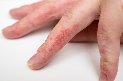 In clinical trials, injectable drug looks like a game-changer for people with chronic eczema