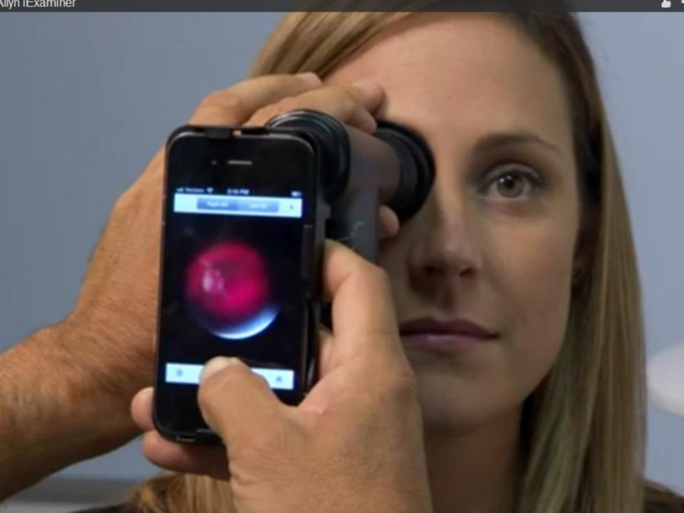 FDA clears iPhone app for retinal images that could expand telemedicine eye exams (video)
