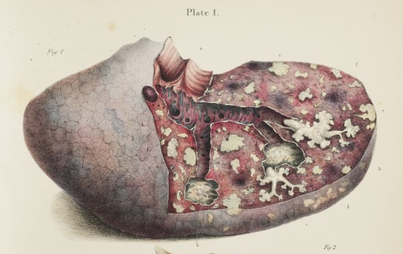 from the Lilly Library. Robert Carswell, Pathological Anatomy. Illustrations of the Elementary Forms of Disease. London, 1838. The major treatise of Carswell, an artist and pathologist, contains hundreds of hand-colored lithographs of diseased states based on his watercolors, such as this one depicting a diseased lung with pulmonary tuberculosis.