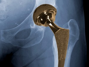 metal on metal hip implant