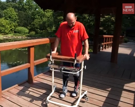 Wow of the week: Olfactory nerve cells help paralyzed man to walk