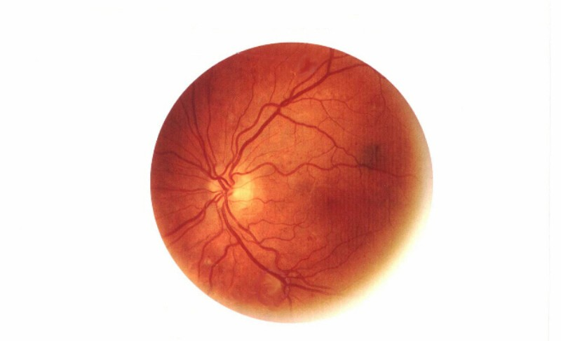Gene therapy company Spark Therapeutics inks licensing deal for a retinitis pigmentosa gene therapy