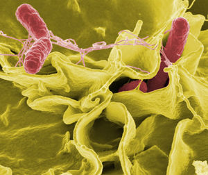 Salmonella decline seen in food poisoning report